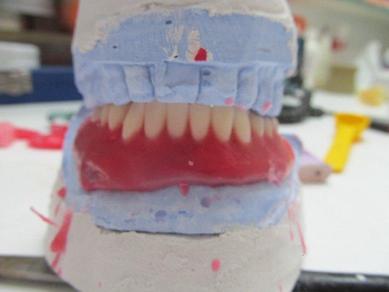Ολικές Οδοντοστοιχίες